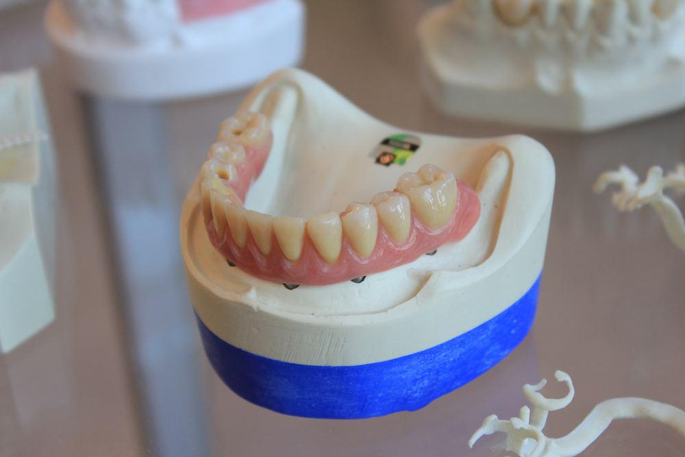 God tandvård är viktigt för hälsan